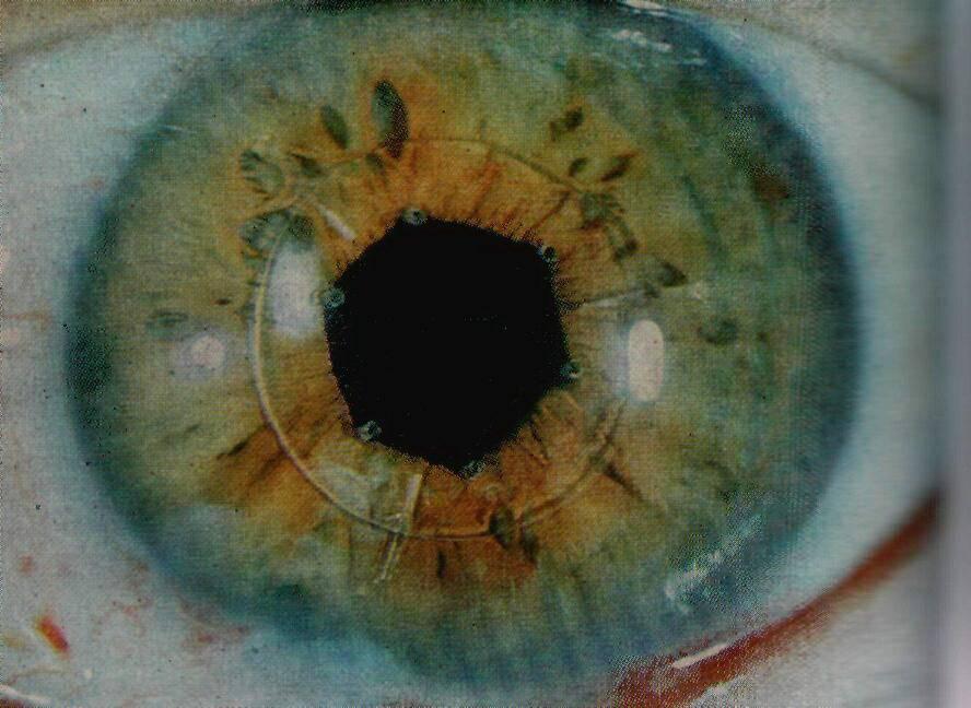 искусственные хрусталики для глаз