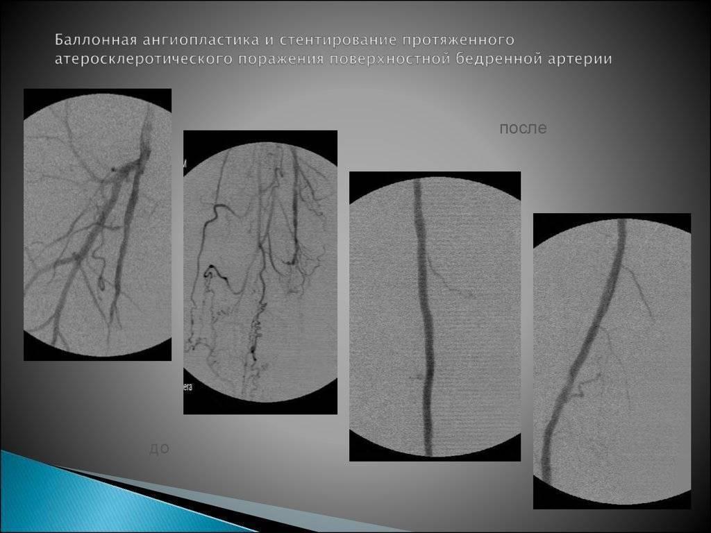 Баллонная ангиопластика и стентирование - что это такое? определение термина