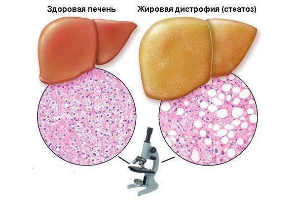 стеатоз печени симптомы