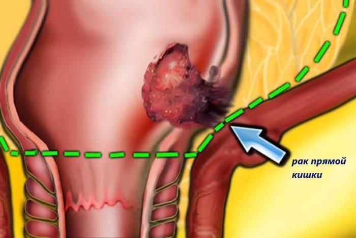 рак геморроя симптомы