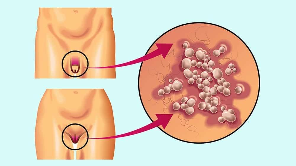 Анальный герпес: симптомы и лечение