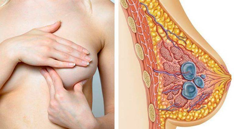 после лактостаза болит грудь
