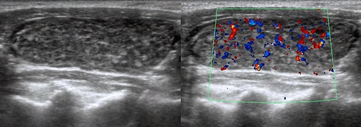 гипоэхогенный ободок щитовидной железы