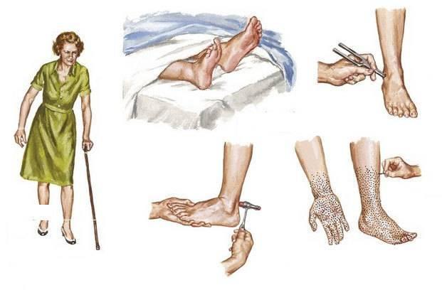 Что такое полинейропатия нижних конечностей и можно ли вылечить болезнь?
