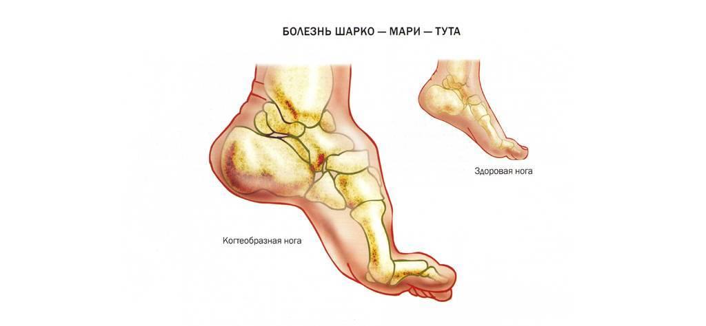 Болезнь шарко-мари-тута: причины, лечение, прогноз — онлайн-диагностика
