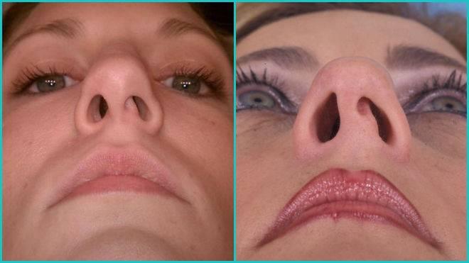 Искривление носовой перегородки - симптомы, причины, лечение, операция, последствия