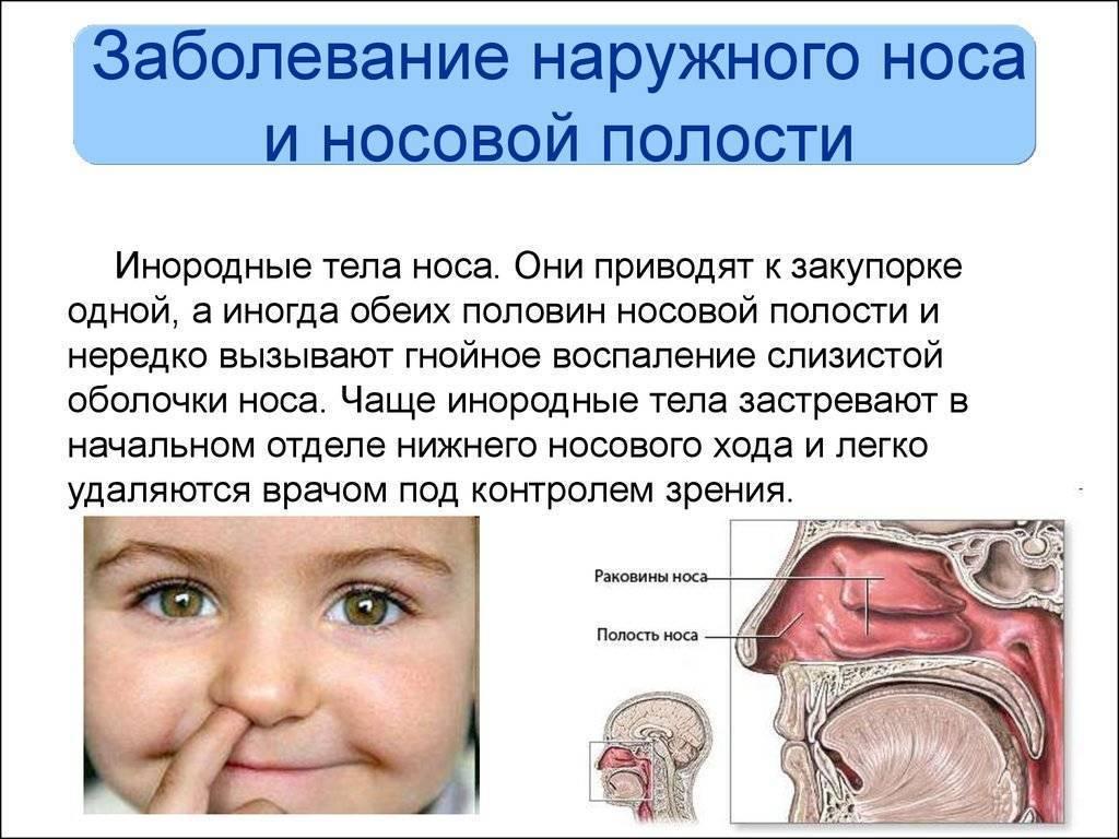 болезни слизистой носа