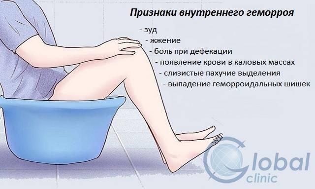 геморрой у женщин медикаментозное лечение
