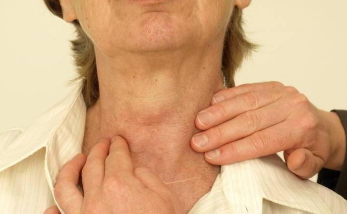 Давит на горло щитовидка