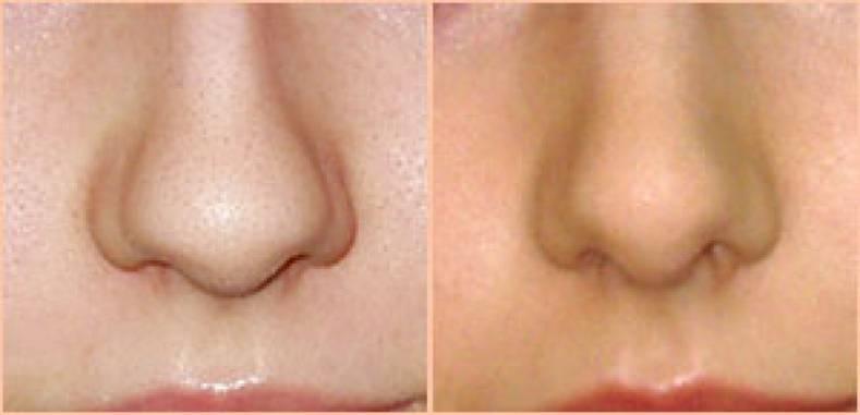Шелушатся крылья носа - все возможные причины и методы лечения