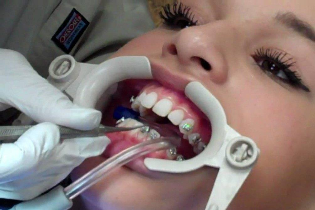 из за брекетов болят зубы