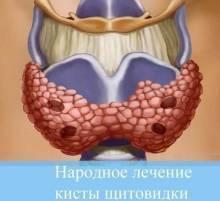 коллоидная киста на щитовидке