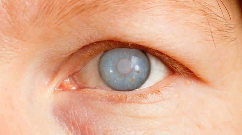 В глаз попала соринка – что делать, и когда обращаться к офтальмологу при наружном инородном теле в глазу