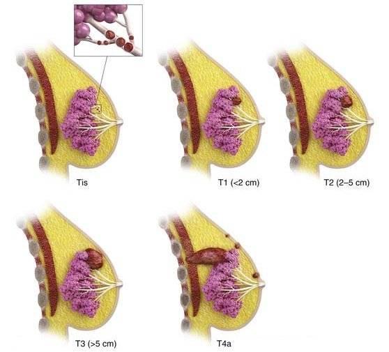 инфильтрирующая карцинома молочной железы прогноз