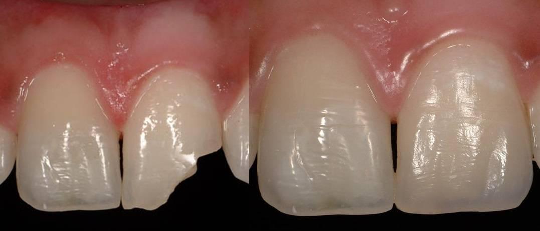 Фотополимерная реставрация зубов, цены в стоматологии «президент»