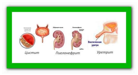 Хронический цистит и пиелонефрит