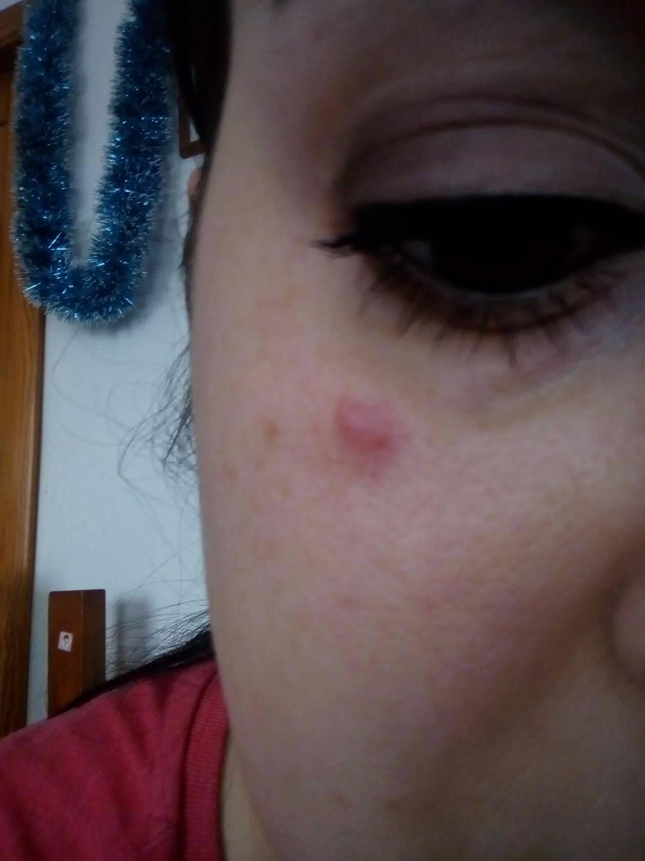 красные точки возле глаз