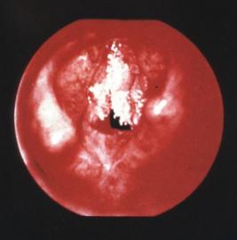 Папилломы в горле и современные методы лечения