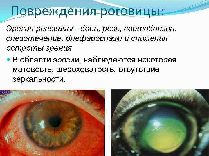 Что делать при травме глаза