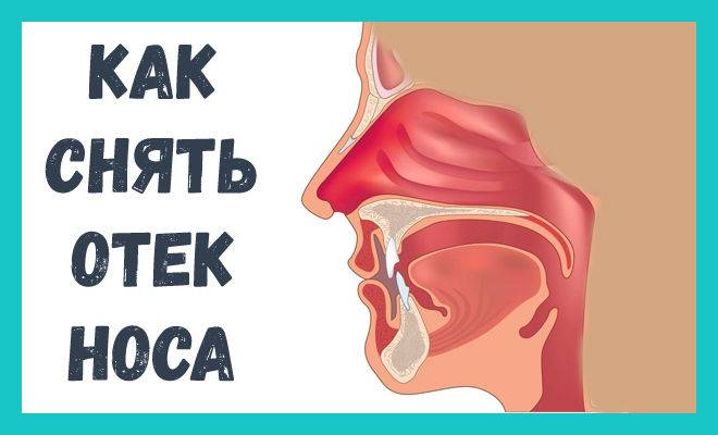 Как снять отек в носу при насморке без сосудосуживающих капель в нос
