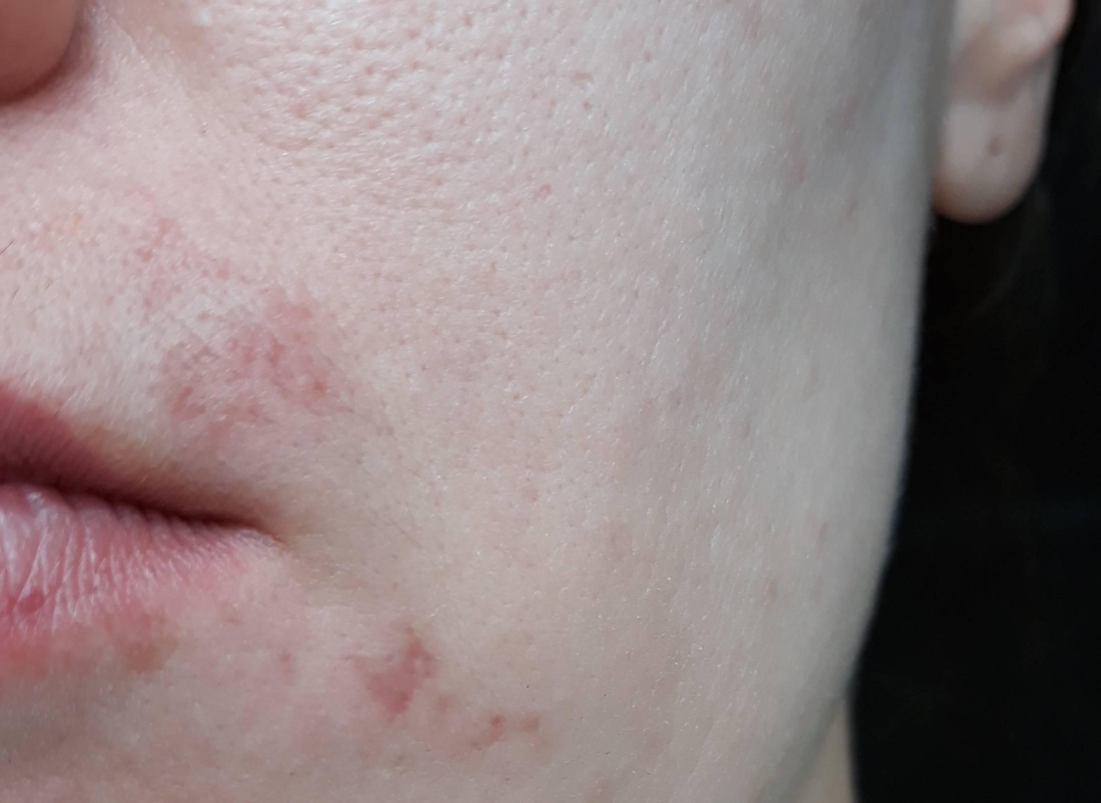 Симптомы и лечение герпеса на лице