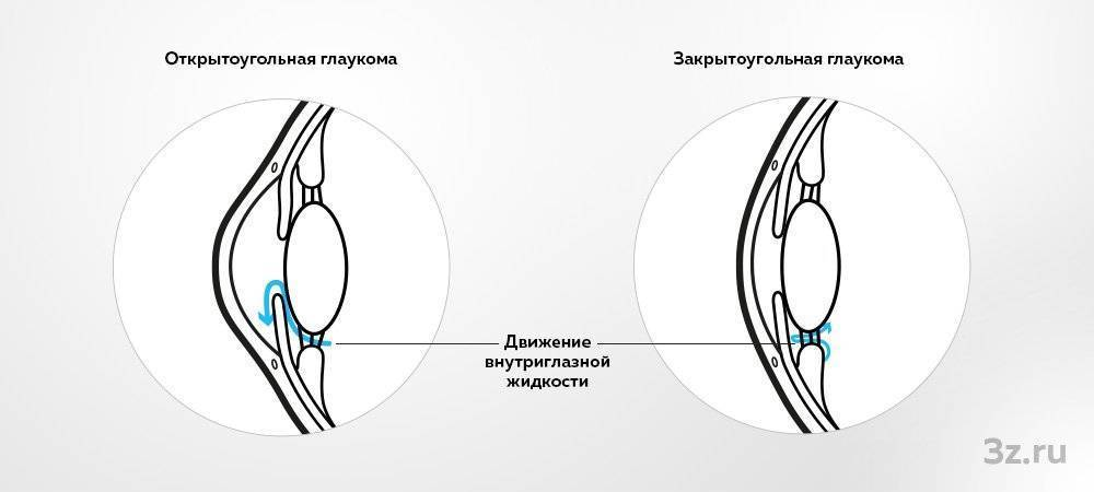 Открытоугольная первичная глаукома. причины, симптомы, диагностика, лечение и профилактика заболевания :: polismed.com