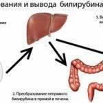 гипербилирубинемия причины