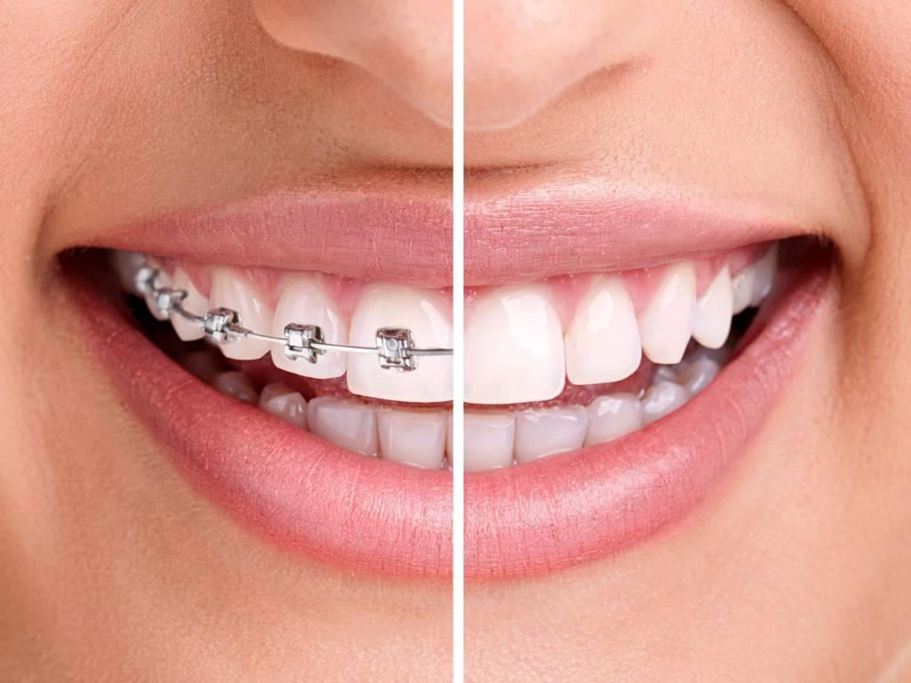Брекеты на зубы взрослым