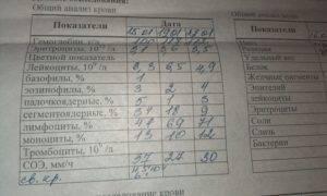 Методы диагностики псориаза: лабораторная и интрументальная
