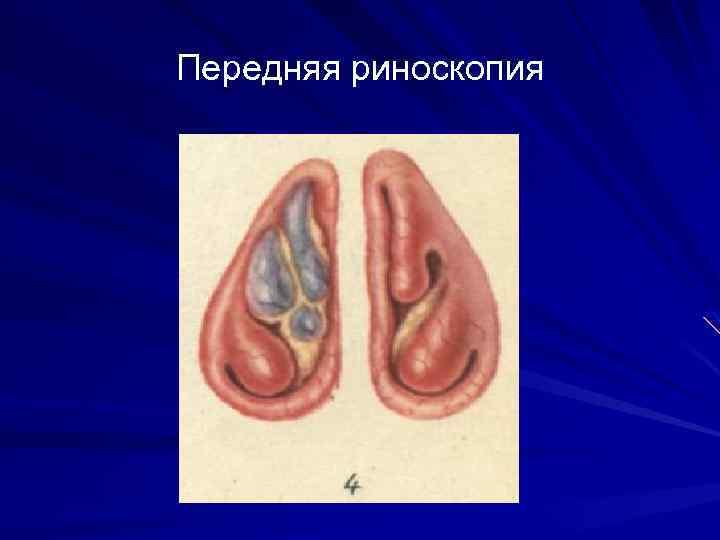 Лечение атрофического ринита у ребенка