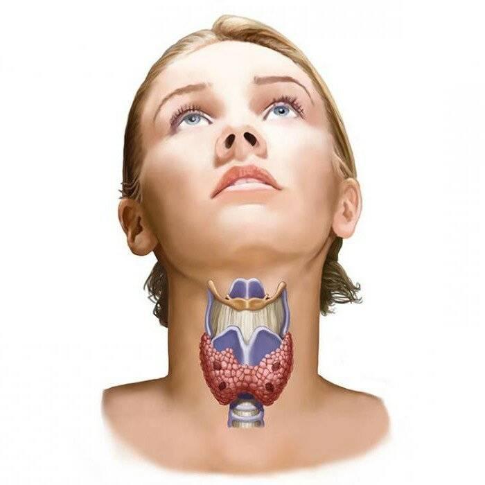 Заболевания щитовидной железы симптомы и причины у детей
