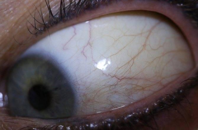 черные точки в глазу