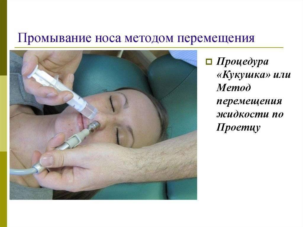 Промывание носа кукушка
