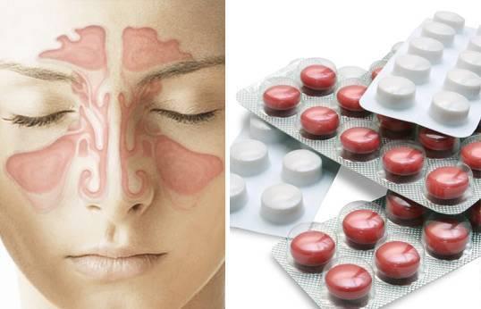 антибиотики от синусита
