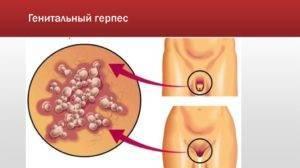 Генитальный герпес: причины, симптомы, чем и как лечить