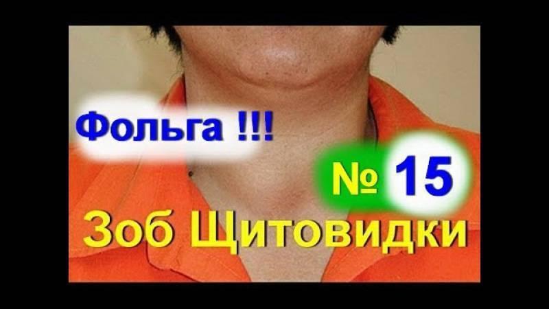 Лечение щитовидной железы лечение народными средствами   pro shchitovidku