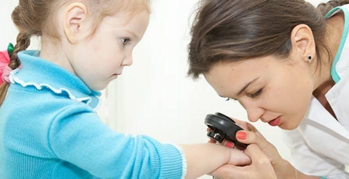детский псориаз признаки