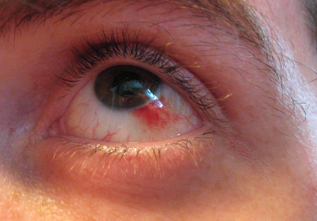 Линз краснеют болят глаза