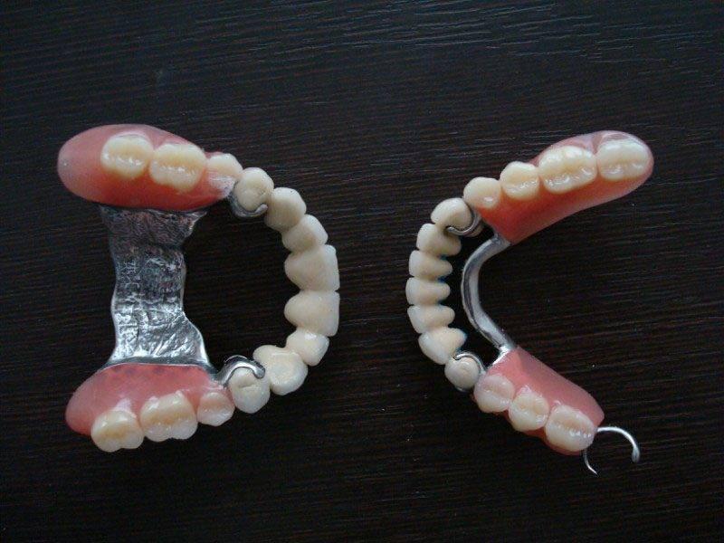 Какой зубной протез поставить: сравниваем варианты и выбираем лучший