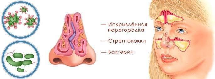 Хронический гайморит: лечение, симптомы