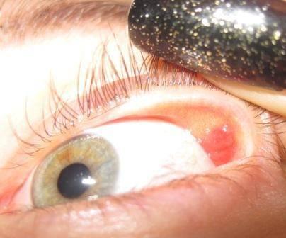 Что делать, если болит глазное яблоко и как определить причину?