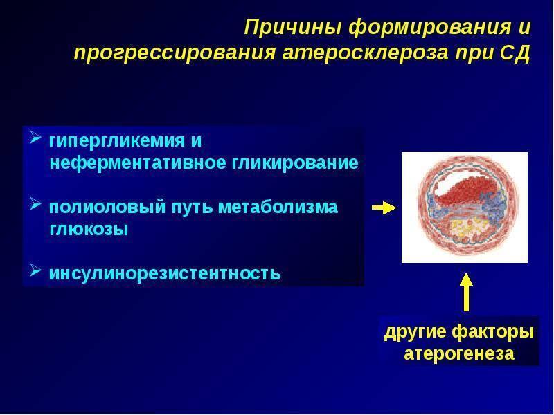 диабетический атеросклероз