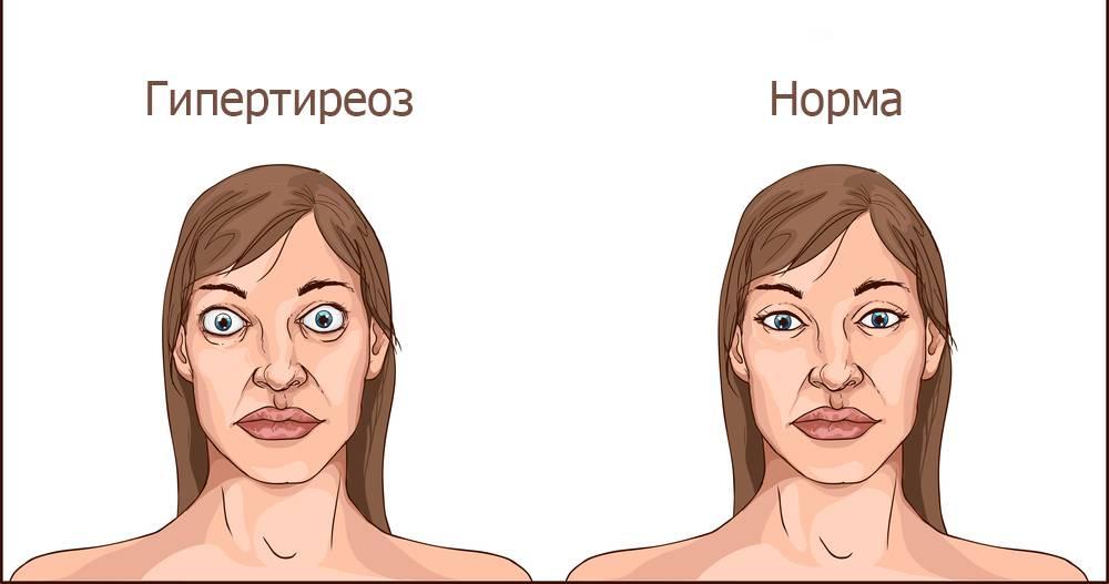 Противопоказания при заболеваниях щитовидной