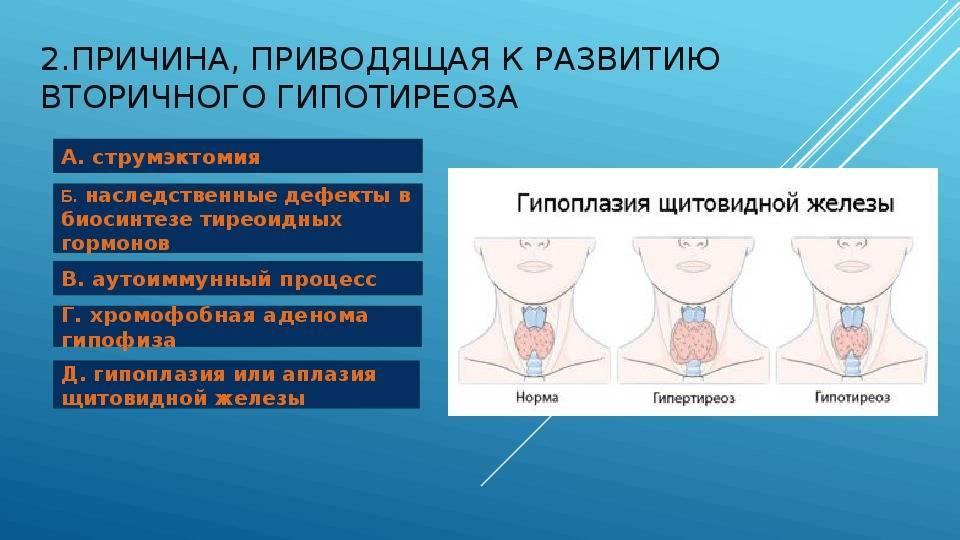 Тиреоидит. причины, симптомы, диагностика и лечение болезни :: polismed.com