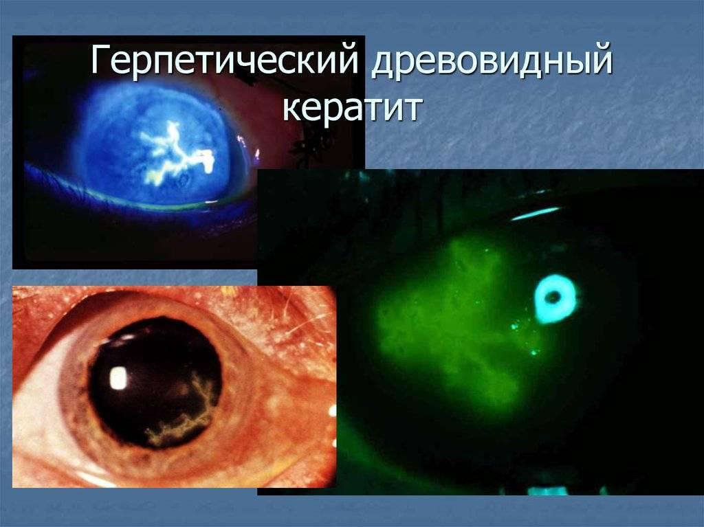 Клиническая картина и правильное лечение герпетического кератита — как не потерять зрение