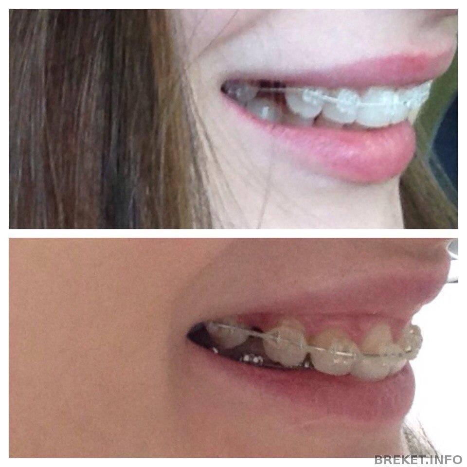 брекеты без удаления зубов последствия