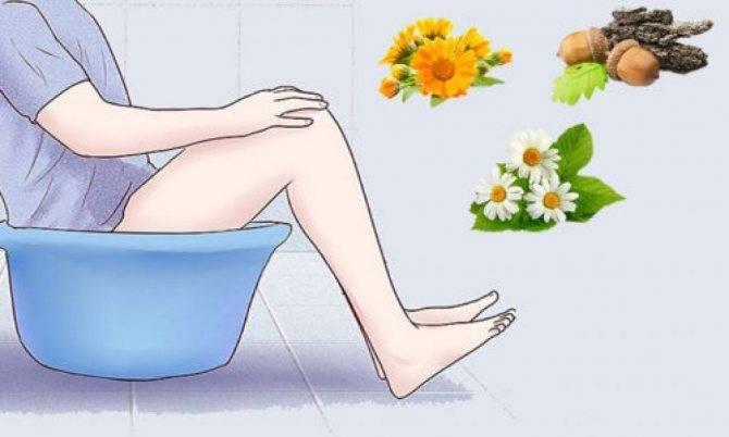 ванночки при воспалении геморроидального узла