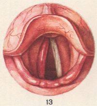Туберкулез глотки и гортани: причины, симптомы, лечение