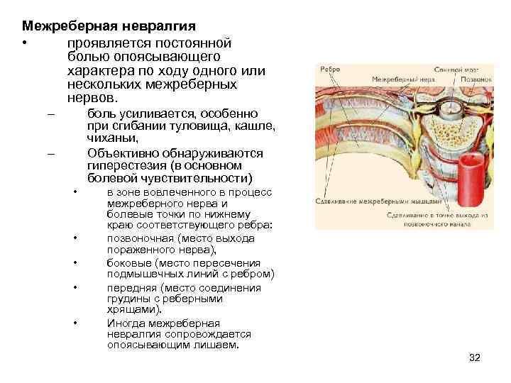 лечение межреберной невралгии слева лечение