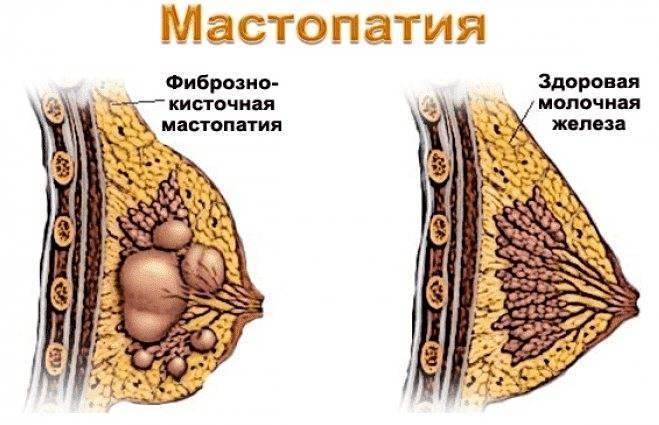 при мастопатии можно кормить грудью